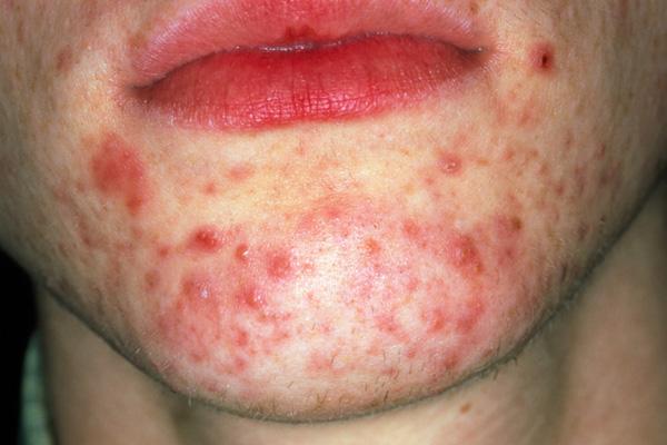 Acne-vulgaris-omega-3