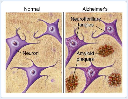 Alzheimer's and Omega 3