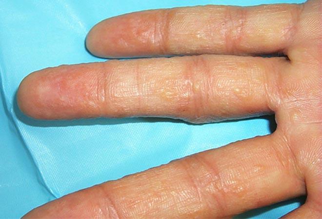 Eczema and Omega 3