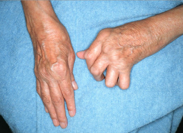 Rheumatoid Arthritis and Omega 3