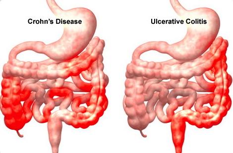Ulcerative-colitis-omega-3