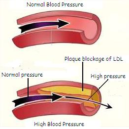 high-blood-pressure and omega 3