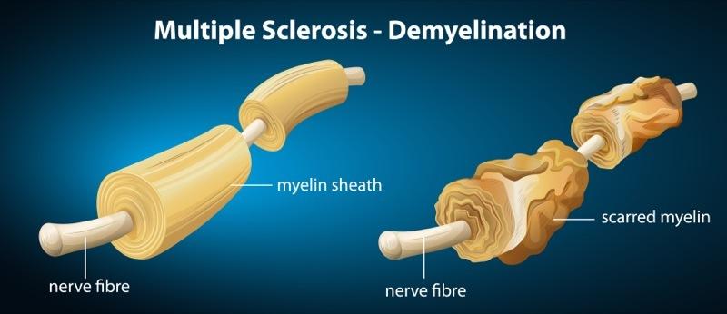 multiple-sclerosis-neurological-disorder and omega 3